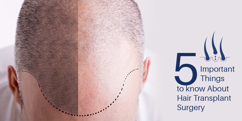5 Important Things to know About Hair Transplant Surgery