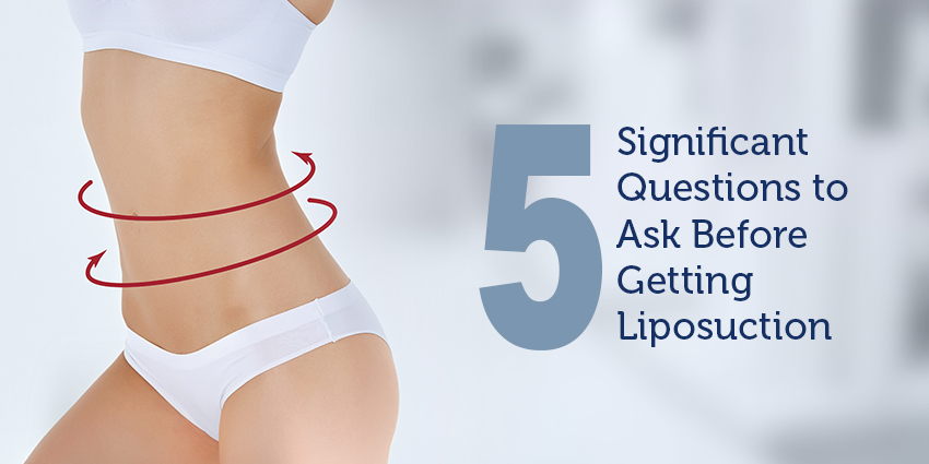 5 Significant Questions to Ask Before Getting Liposuction