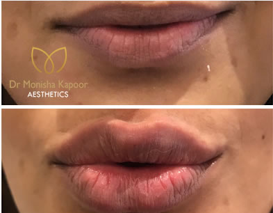 Permanent lip treatment by Dr. Monisha Kapoor