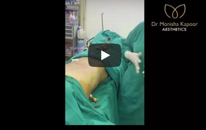 video-liposuction-surgery-by-Dr. Monisha Kapoor