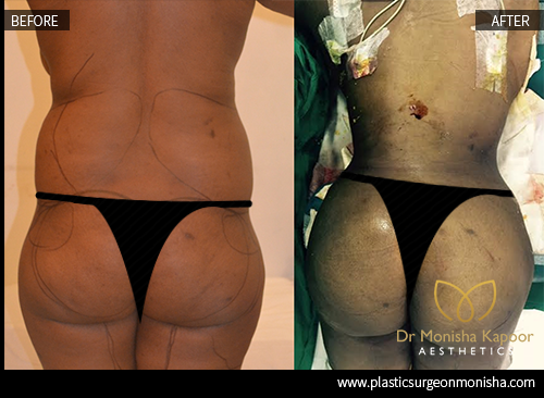 Before After Best Plastic Surgeon In Delhi For