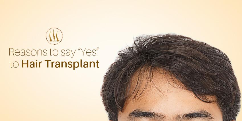 5 Reasons Why You Should Choose Hair Transplant