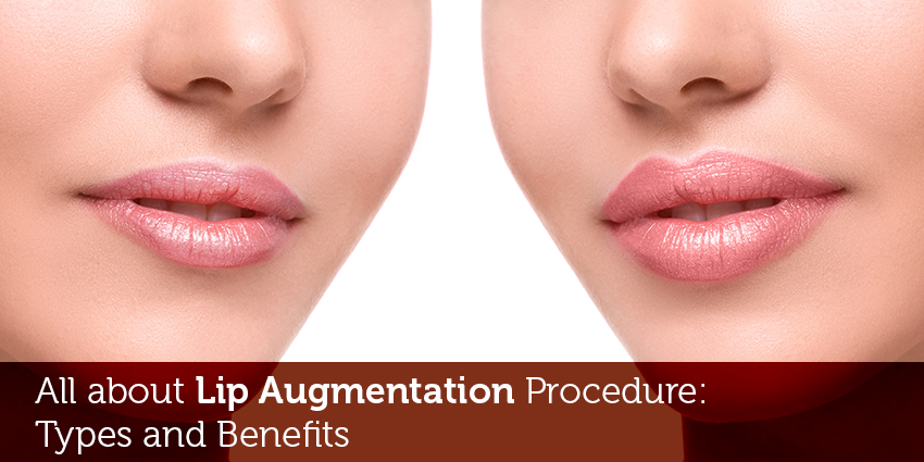 Know all about Lip Augmentation Procedure: Types and Benefits