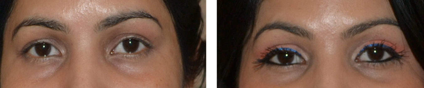 Best eyelash transplant in India