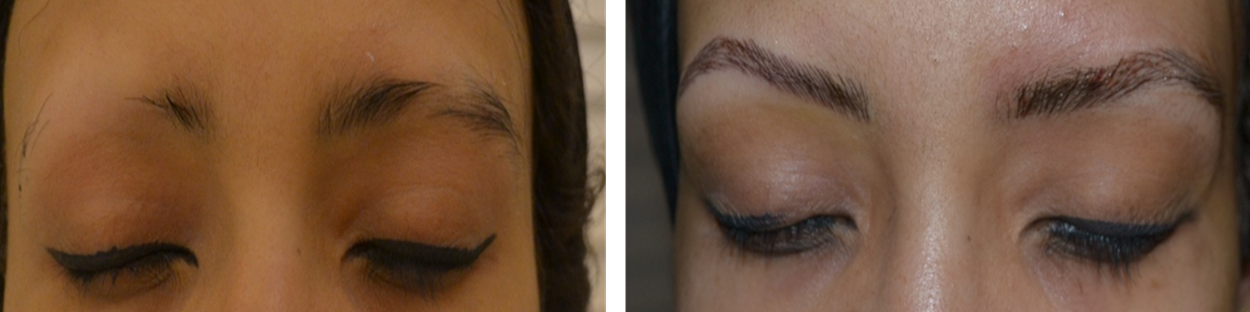 Best Micro Blading in India