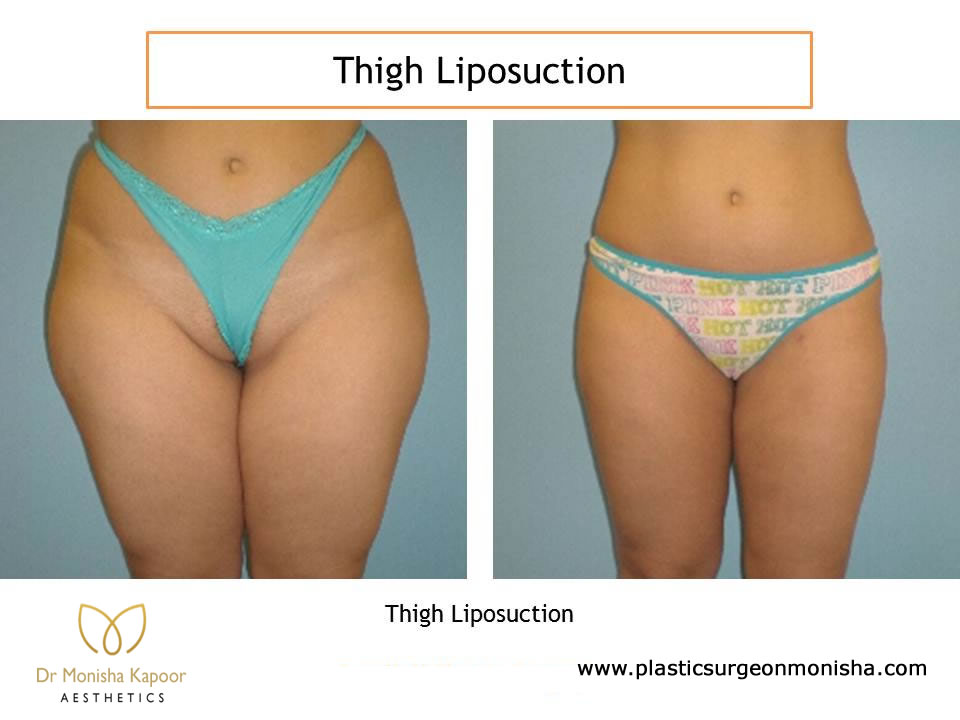 Thigh Liposuction Surgery by Plastic Surgeon monisha Kapoor