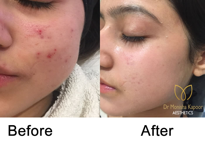 Acne Scars treatment in delhi