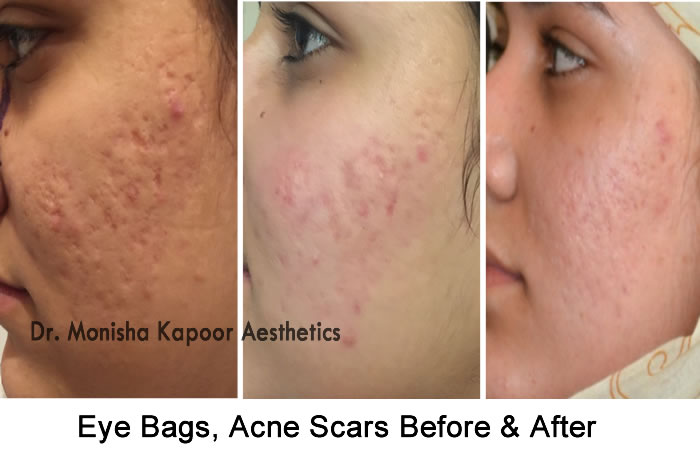 Eye Bags, Acne Scars Removal in Delhi, Indiaby Dr. Monisha Kapooor