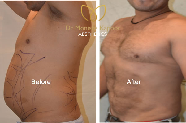 Liposuction in delhi