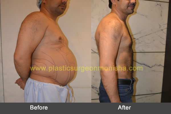 Liposuction & Six Pack ABS Surgery