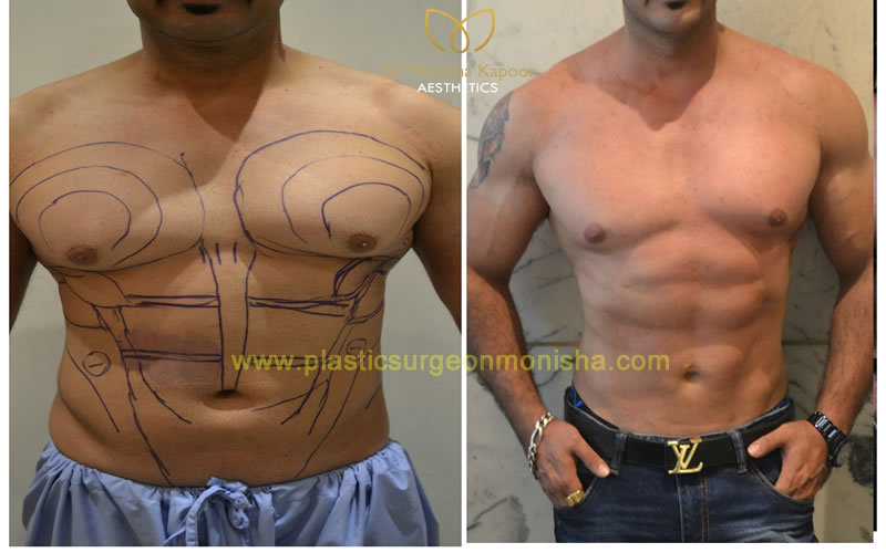 Liposuction and 6 Pack abs in delhi by Monisha Kapoor