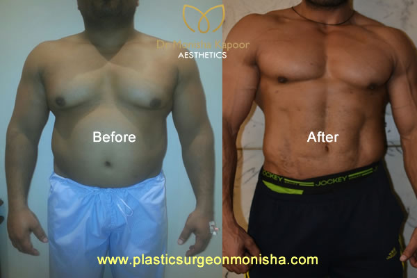 6pack abs and liposuction surgery by plastic surgeon monisha kapoor