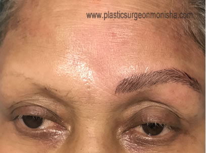 PERMANENT EYEBROW SHAPING IN DELHI