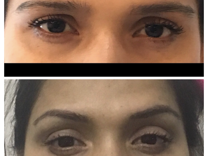 Microblading or permanent browshaping