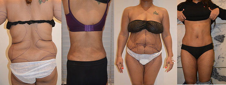 Best Liposuction surgeon in delhi