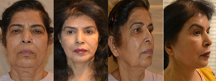 Facelift without surgery in delhi