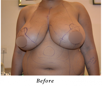 best Breast surgery in India