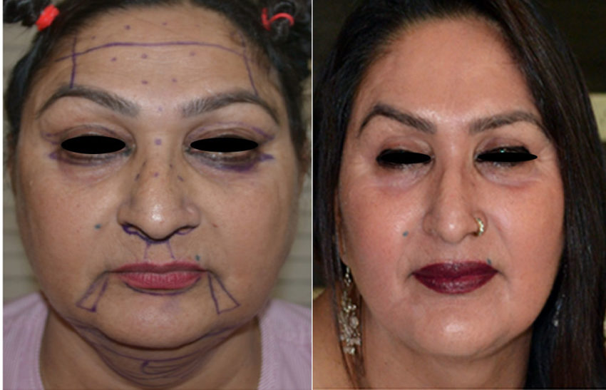 face lift surgery in delhi