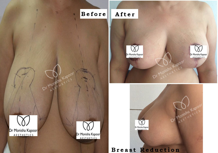 best breast reduction surgery in delhi