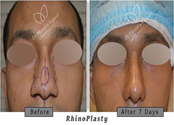 Best rhinoplasty surgery in india