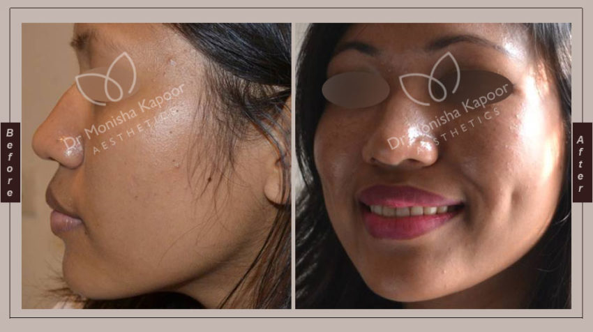 Dimple creation treatment