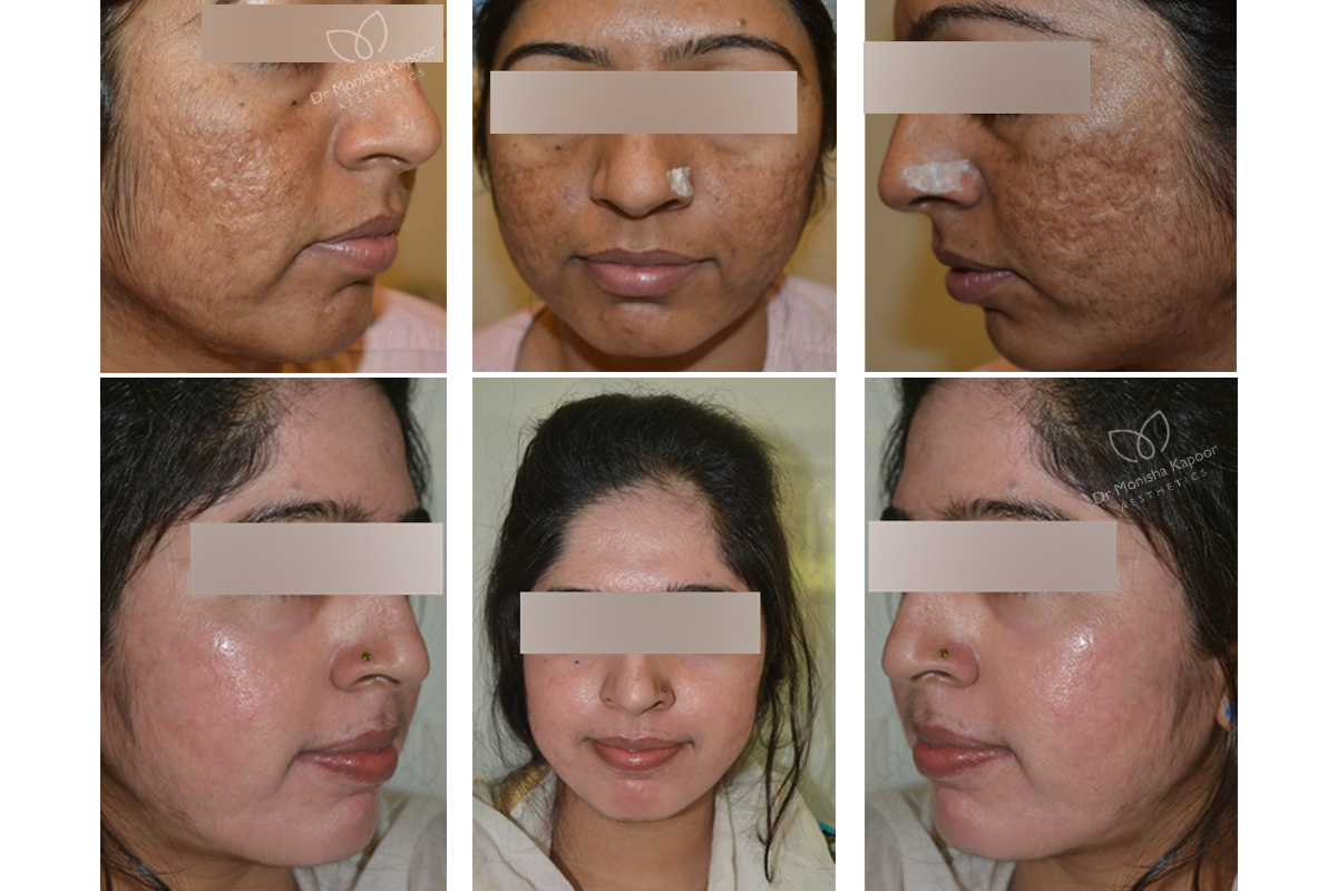 Best Acne Scars Treatment In Delhi Acne Scar Removal Doctor India