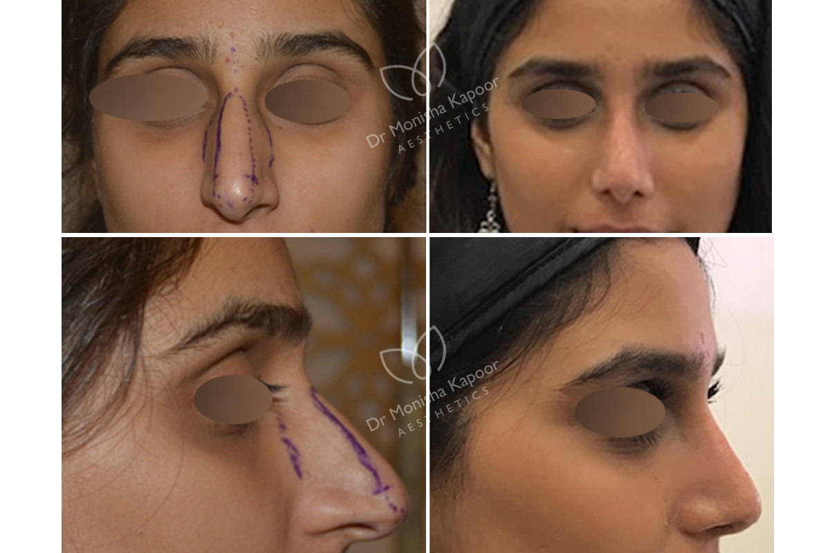 Best Rhinoplasty Surgeon Delhi Nose Plastic Surgeon India