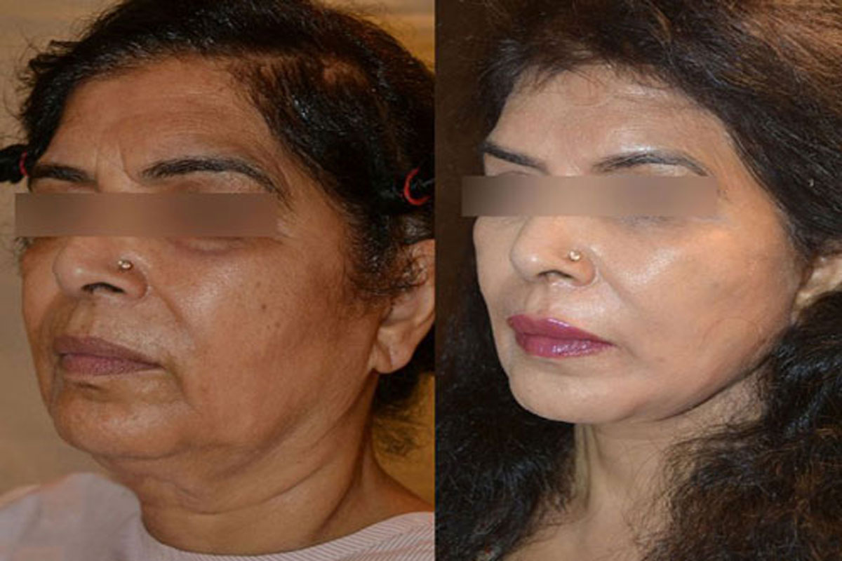 Face Cosmetic Surgery in Delhi | Face Surgery Cost India