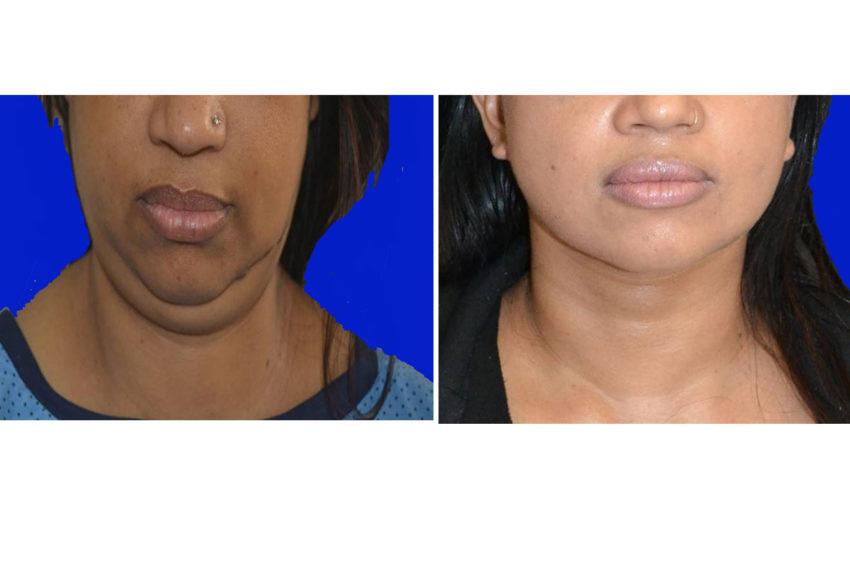 double chin removal after & before